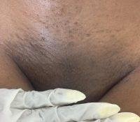 waxing 3